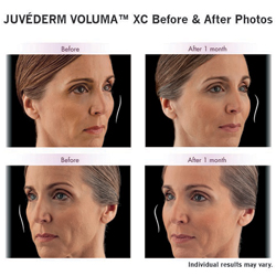 Woman's face before and after voluma injections