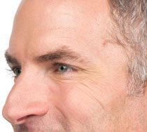 Man's profile showing crow's feet smoothed out