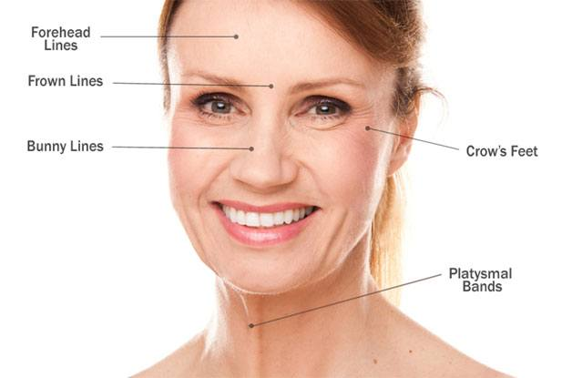 Common Botox Injection Points