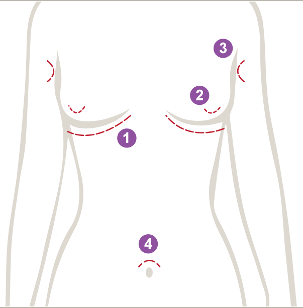 Incision options for a breast augmentation