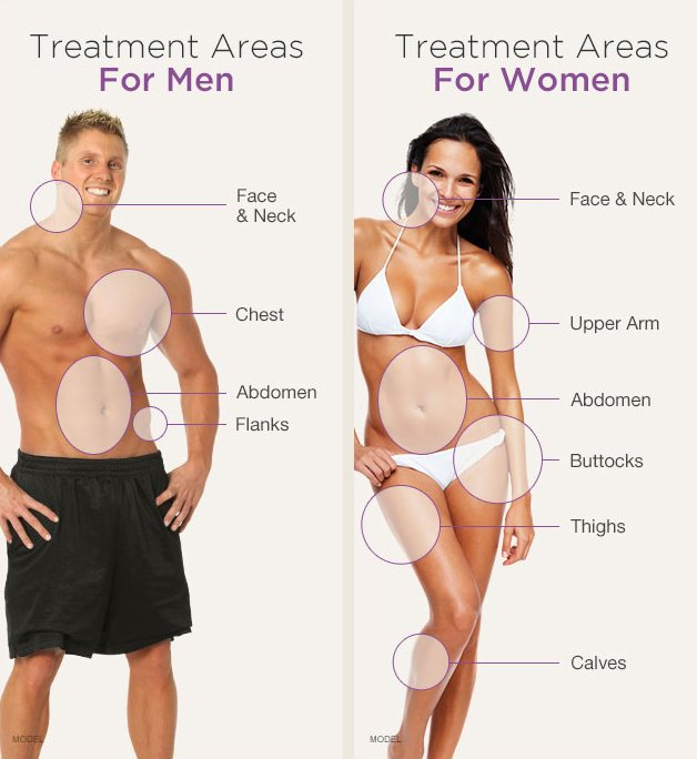 Treatment areas for men are face and neck, chest, abdomen, and flanks. Areas for women are face and neck, upper arm, abdomen, buttocks, thighs, and calves.